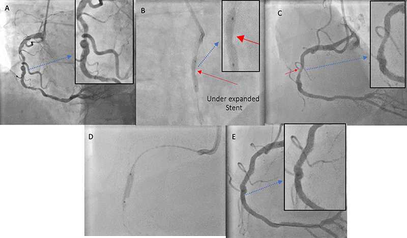 Finnegan - Figure 1. A challenging case of off-label intravascular lithotripsy (IVL) in a recently stented calcific mid-right coronary artery (RCA) stenosis. A. Calcified mid-vessel lesion pre-treatment. B. Stent balloon appears under-expanded (red arrow) in mid-segment and the vessel was clearly under-prepared for stent delivery. C. Final result post-final balloon inflation for post-dilation in the first procedure (under-expanded segment highlighted by red arrow). D. IVL balloon inflated at six atmospheres during treatment delivery with immediate full expansion of under-expanded stent. E. The final angiographic result post-IVL. Please note that the hashed blue line indicates zoomed thumbnail images