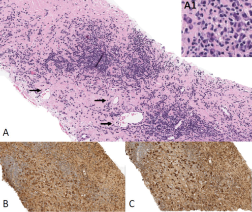 Pourafkari - Figure 2. A. The pericardial tissue biopsy background is composed of stromal fibrosis and shows patchy nodular lymphoplasmacytic infiltrate. The predominant cell component consists of mature polytypic (by kappa and lambda immunostains; not shown) plasma cell clusters (inset A1). Scattered slightly dilated veins are present (arrows) with no obvious evidence of obliterative venulitis by histology. B. and C. Representative images of IgG and IgG4 immunohistochemistry that demonstrate strong co-expression of IgG4 in a major subset of IgG+ plasma cells. There is clear evidence of an increased number of IgG4+ plasma cells (>40 cells; C). No metastatic carcinoma is present