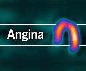 Angina - BJC Learning programme