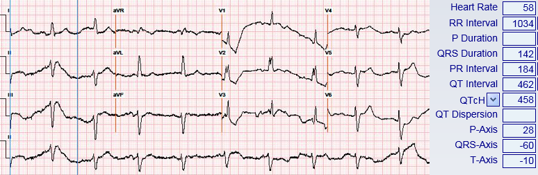 Faulkner - Figure 1. Admission electrocardiogram (ECG) showing sinus bradycardia at 58 bpm, left-axis deviation and partial right bundle branch block (RBBB)