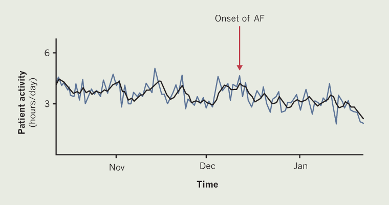 Callum - Figure 1. Daily physical activity collected from a Boston Scientific cardiac resynchronisation therapy pacemaker (CRT-P) device of patient A. The blue line plots daily measurements and the black line provides three-day trends