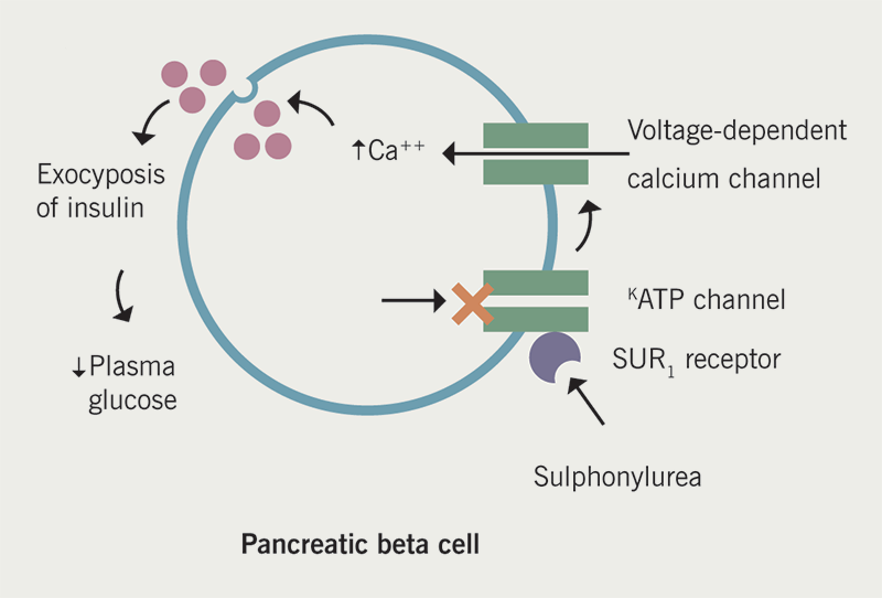 Diabetes module 2 - Figure 2. Mechanism of action of sulfonylureas. After binding to the sulfonylurea receptor (SUR) on pancreatic beta cells, the closure of ATP-K channels is triggered resulting in depolarisation of voltage dependent calcium channels and exocytosis of insulin