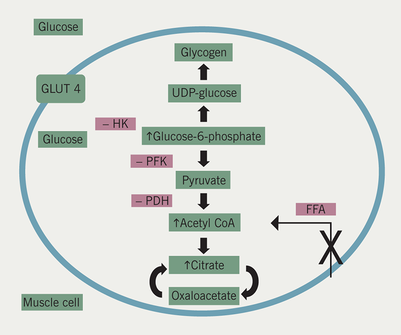Diabetes module 2 - Figure 3. Oxidation of the free fatty acids (FFA) results in inhibition of pyruvate dehydrogenase (PDH). Citrate inhibits phosphofructokinase (PFK). A rise in glucose-6-phosphate inhibits hexokinase (HK). These effects reduce glucose uptake and utilisation. Thiazolidinediones reduce FFA entering muscle cells thereby increasing glucose utilisation at point X. GLUT4 transcription is also increased leading to increased glucose uptake