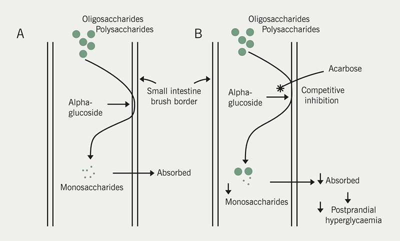 Diabetes module 2 - Figure 4. Mechanism of action of acarbose. Panel A shows polysaccharides and oligosaccharides broken down by alpha glucoside at the small intestine brush border to monosaccharides, which are easily absorbed. Panel B shows acarbose competitively and reversibly inhibits alpha glucoside at the brush border with a weaker effect on pancreatic alpha amylase. The overall effect is the reduction in production and absorption of monosaccharides in the small intestine. In patients with diabetes, this results in a decrease in post-prandial hyperglycaemia