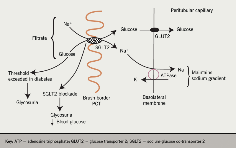 Diabetes module 2 - Figure 6. Sodium-glucose co-transporter 2 (SGLT2) is a high capacity, low affinity transporter of glucose and sodium found in high concentration at the brush border membrane of the S1 and S2 segment of the proximal convoluted tubule (PCT). SGLT2 binds to sodium and glucose in the filtrate and these compounds are translocated across the apical cell membrane. The second stage of reabsorption is the transport of glucose via GLUT 2 transporters in the basolateral membrane. In poorly controlled diabetes, the renal threshold for a glucose reabsorption is exceeded resulting in polyuria and a reduction in blood glucose levels