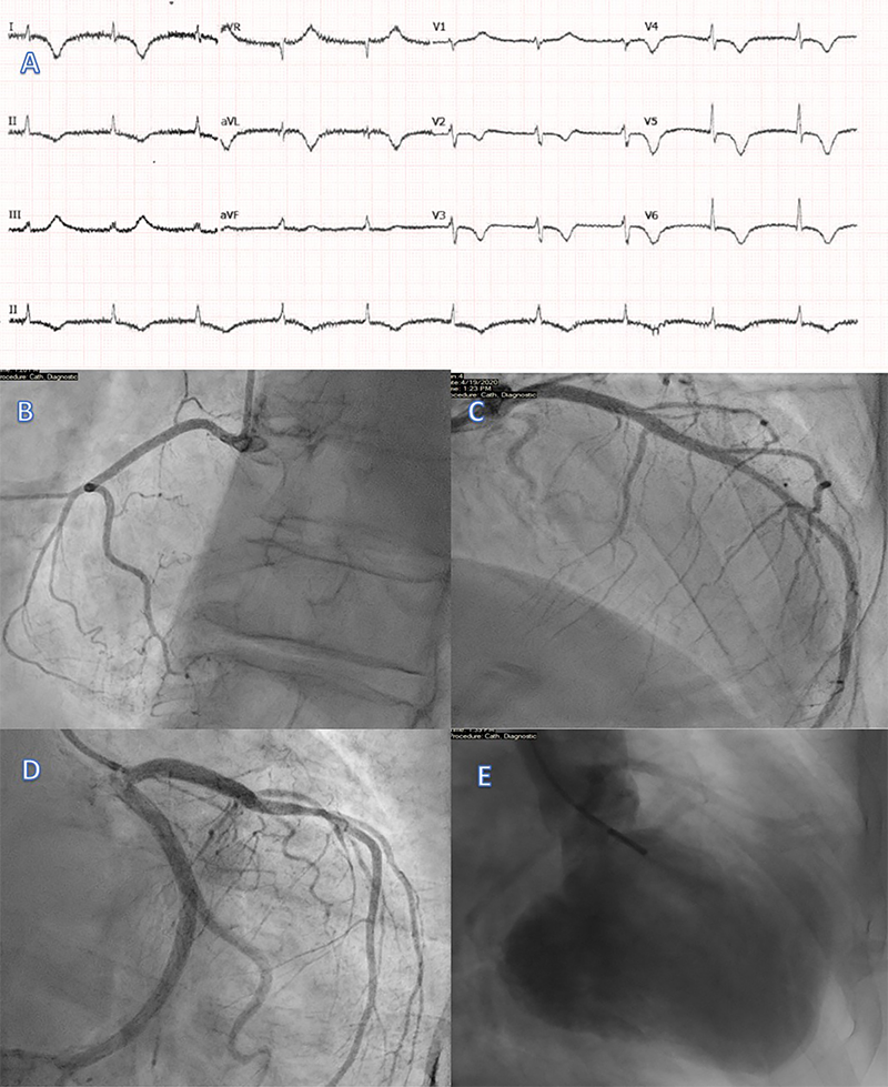 Sekar - Figure 1. A. 12-lead electrocardiogram (ECG) showing atrial fibrillation (AF) with dynamic T-wave inversion in the anterolateral leads and a prolonged QTc interval. B–D. Coronary angiogram showing unobstructed coronary arteries. E. Left ventricular (LV) angiogram demonstrating antero-apical hypokinesis consistent with Takotsubo cardiomyopathy