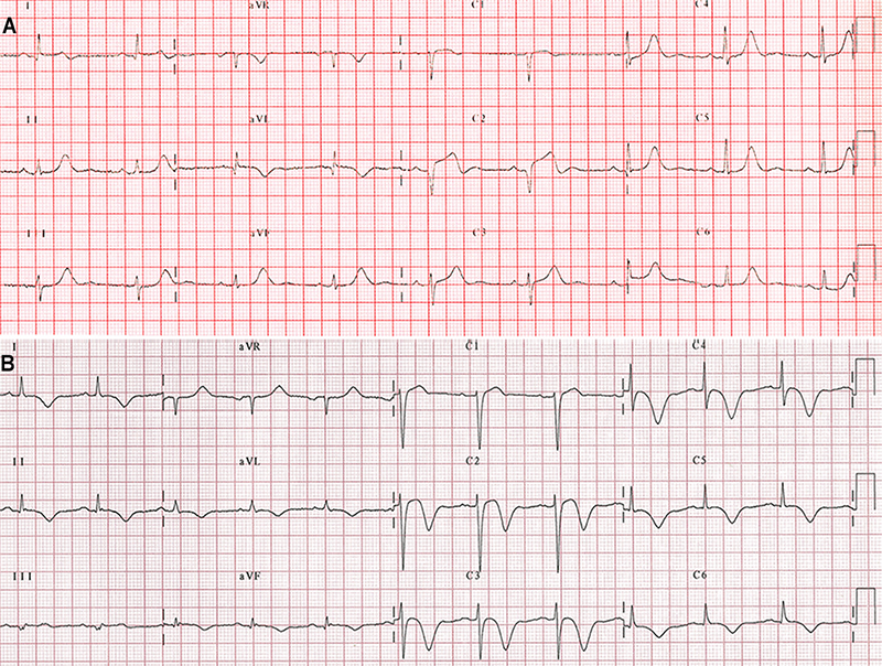 Diaz-Navarro - Figure 3. A. A 12-lead electrocardiogram (ECG) in an 80-year-old woman with a focal atypical variant of Takotsubo syndrome showing sinus rhythm with ST-segment elevation of <1.0mm in leads V1 and V3; 2.0 mm in lead V2 with a QS wave; T-wave inversions in leads D1 and AVL; and corrected QT-interval of 446 ms. B. ECG in a 68-year-old woman with a typical variant of Takotsubo syndrome showing a sinus rhythm with ST-segment elevation <2.0mm in leads V1 and V2; T-wave inversions in leads D1, D2, AVL, V2–V6; positive T-wave in lead aVR, and prolongation of the corrected QT-interval of 491 ms