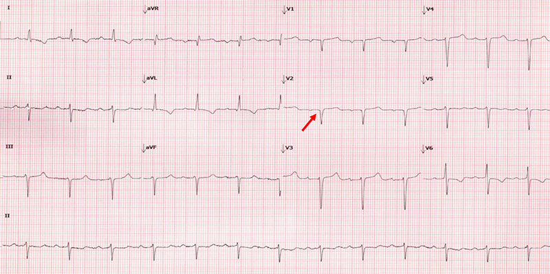 Krepp Amyloid diagnosis - Figure 3. Electrocardiogram (ECG) from a patient with confirmed wild-type ATTR with a 'pseudo-infarction' pattern (arrow). Also notable is the lack of ECG low-voltage despite the presence of severe concentric left ventricular hypertrophy on echocardiography