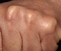 Lipids module 3: clinical diagnosis of dyslipidaemia