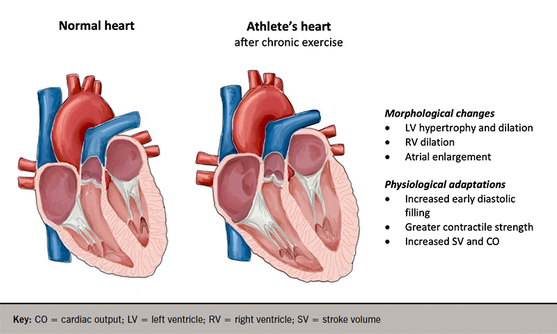 Goh - Figure 1. Visual representation of the morphological and physiological adaptations in the heart with chronic exercise