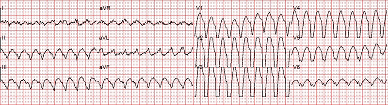 Chatterjee - Figure 1. First electrocardiogram (ECG) taken during palpitation. This shows atrial flutter with 1:1 atrioventricular conduction with left bundle branch block (LBBB) pattern and very prolonged QRS (QRS 296 ms)