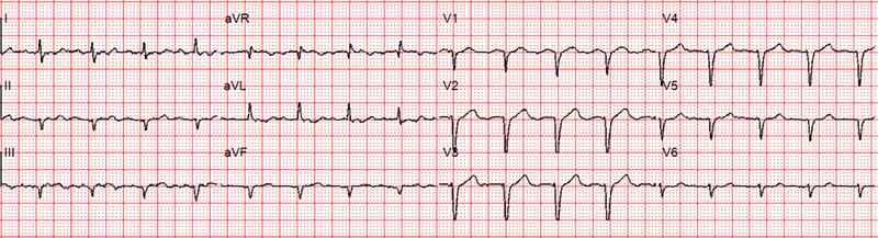 Chatterjee - Figure 2. Second ECG performed when the patient felt better