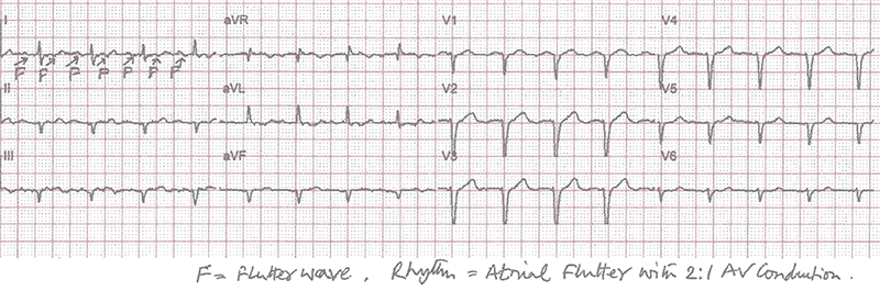 Chatterjee - Figure 3. Explanation added to second ECG showing flutter wave (F) and a 2:1 AV conduction rhythm
