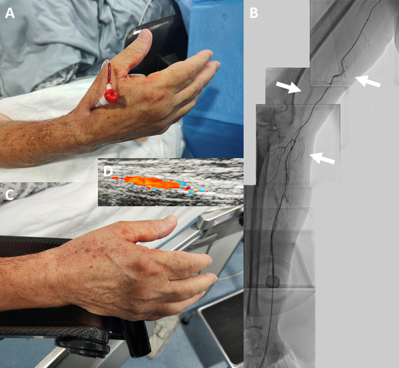 Lim - Figure 1. A. Distal radial artery cannulated with a 4Fr sheath. B. From the top of the picture the course of the radial recurrent artery has a loop (top arrow), and it joins the radial artery at the second loop (lower arrow). The middle arrow points to the parallel brachial artery. C. Haemostasis with manual pressure following removal of the sheath. D. Doppler ultrasound of the patent radial artery