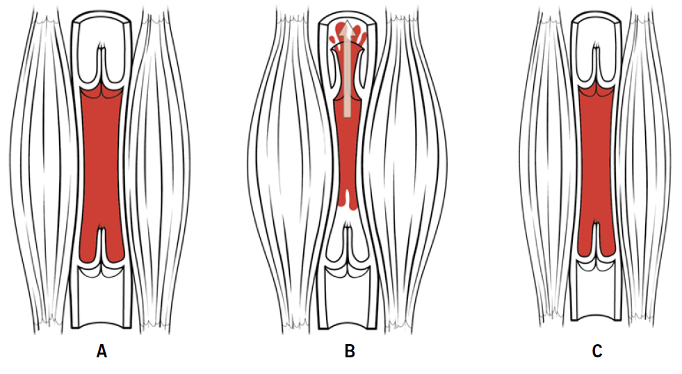 Sever - Figure 1. A. Muscles relaxed, valves closed. B. Muscles contracted, valve above muscle opens. C. Loss of skeletal muscle bulk, on contraction valves remain closed