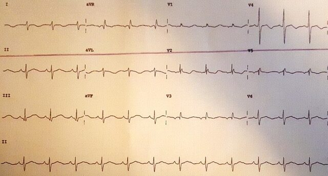 Daoub - Figure 1. Admission electrocardiogram (ECG) demonstrating a sinus rhythm, right-axis deviation, left posterior hemi-fascicular block and a prolonged QTc interval