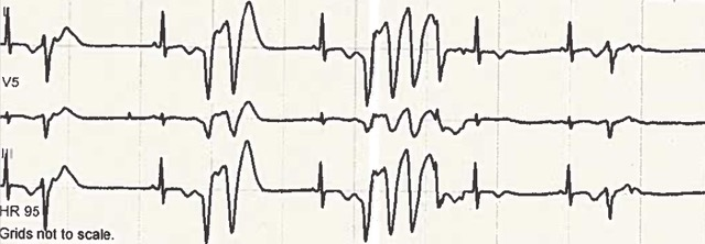 Daoub - Figure 2. ECG showing non-sustained polymorphic ventricular tachycardia